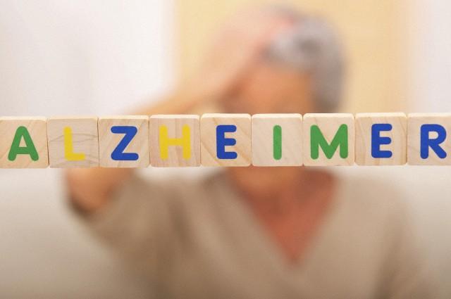 28 Jan 2011 --- Alzheimer'S Disease --- Image by © BSIP/Corbis