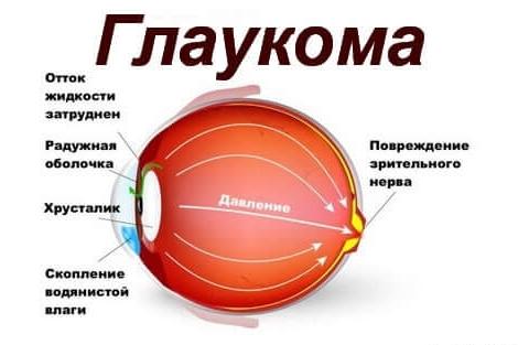 glaukoma-vnutriglaznoe-davlenie