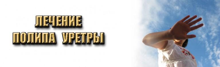 polip-uretry=